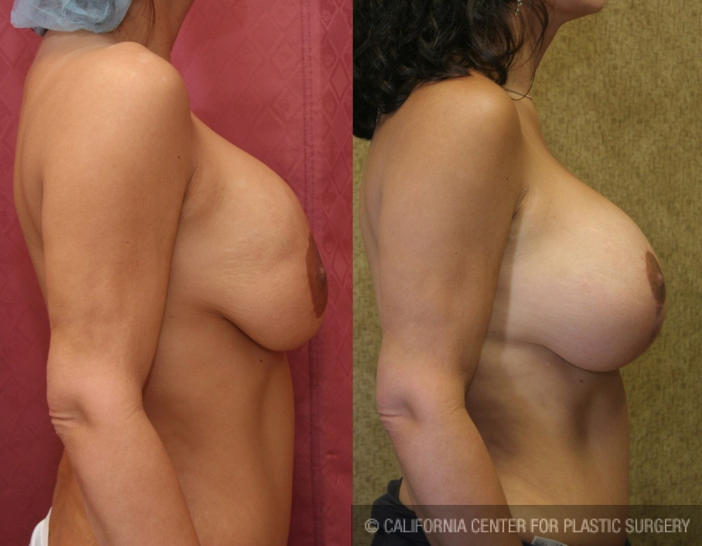Breast Augmentation (Revision) Before & After Patient #6558