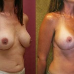 Full Breast Lift Before & After Patient #6697
