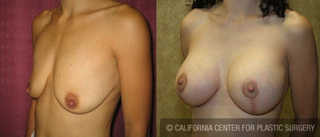 Full Breast Lift Before & After Patient #6709