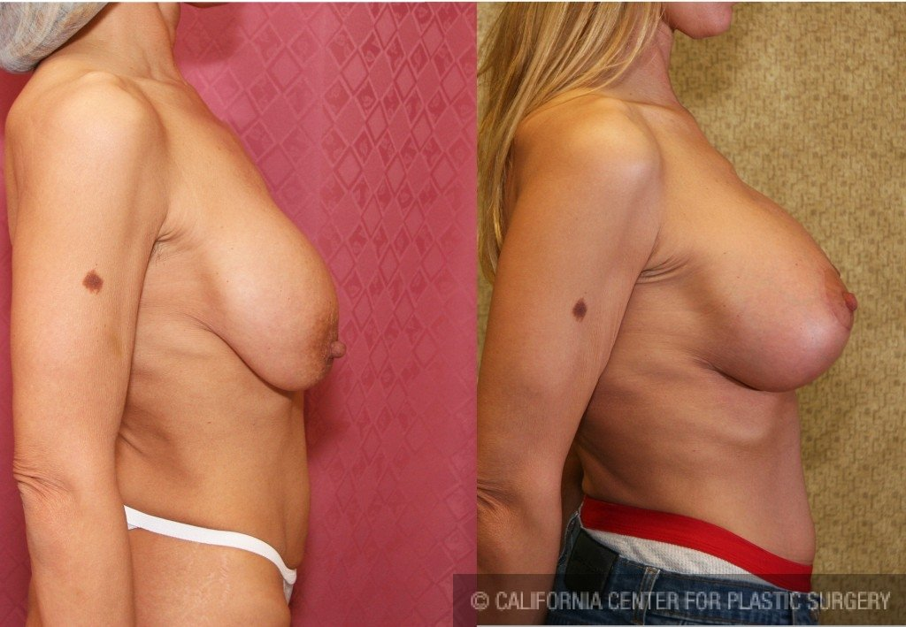 Messages opinion, breast implant lift picture good idea