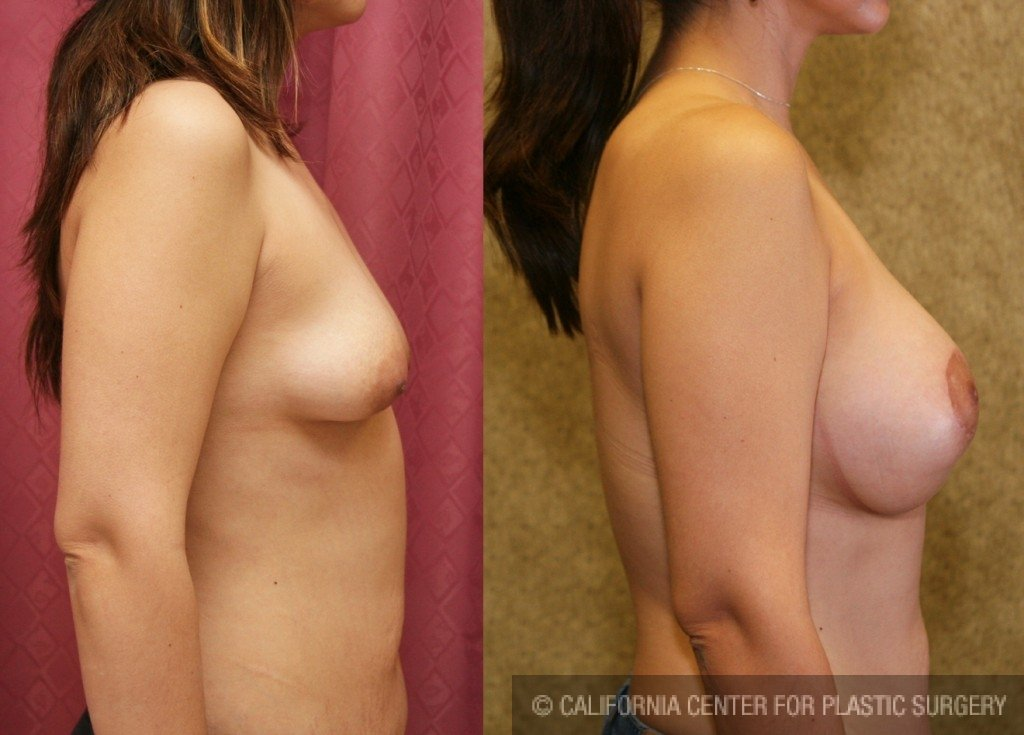 Moderate Breast Lift Before & After Patient #6602