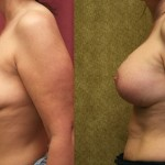 Full Breast Lift Before & After Patient #6738