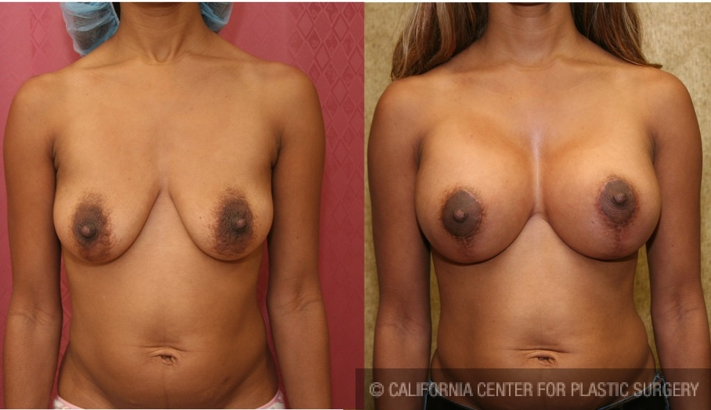 Full Breast Lift Before & After Patient #6819