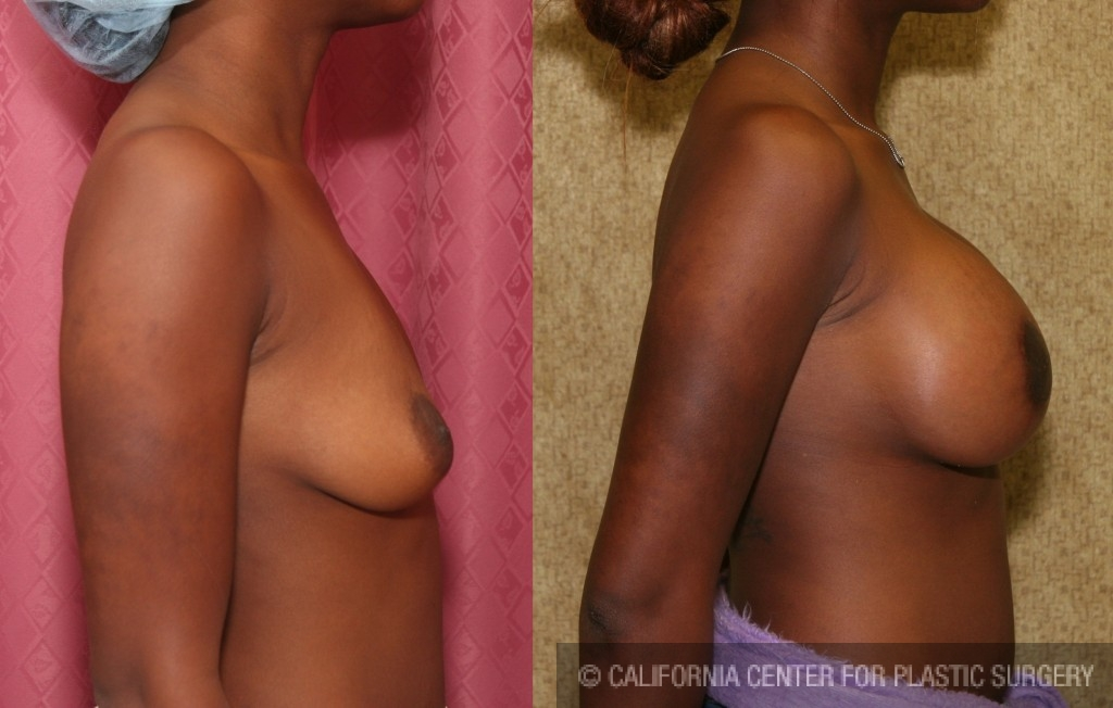 Moderate Breast Lift Before & After Patient #6646
