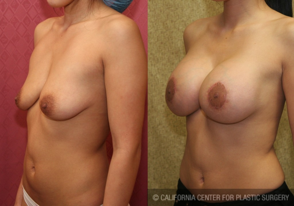 Moderate Breast Lift Before & After Patient #6656