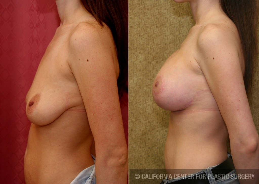Full Breast Lift Before & After Patient #6902