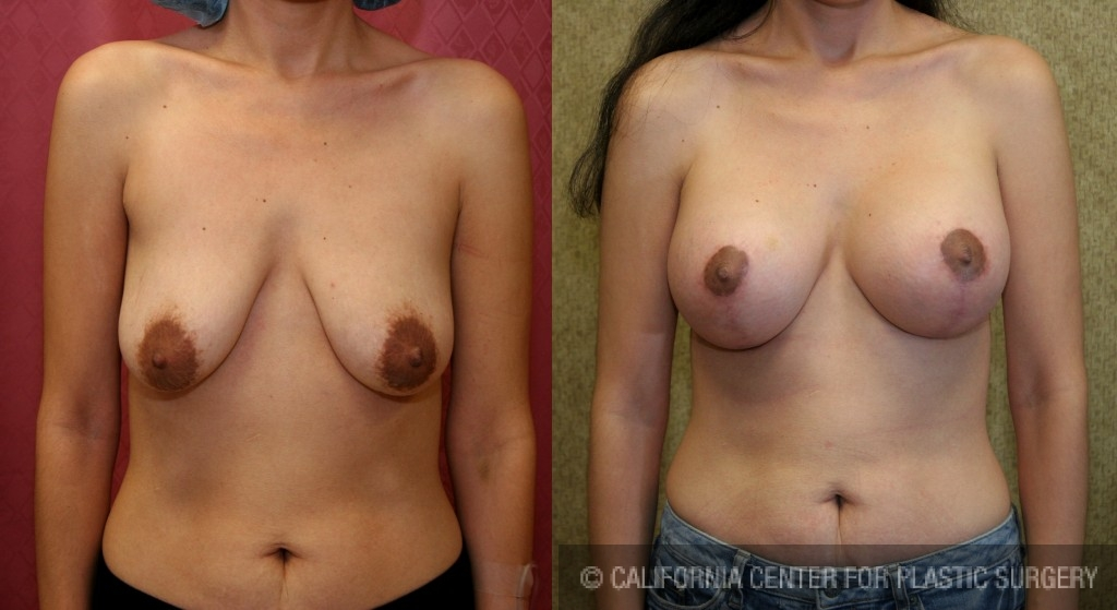 Full Breast Lift Before & After Patient #6909