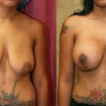 Full Breast Lift Before & After Patient #6915