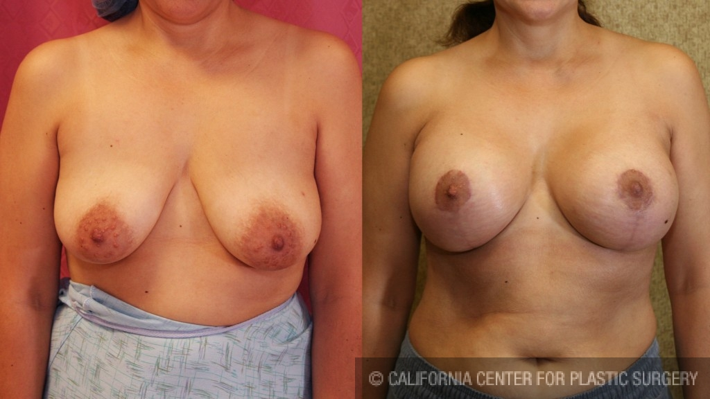 Full Breast Lift Before & After Patient #6925