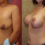 Full Breast Lift Before & After Patient #6919