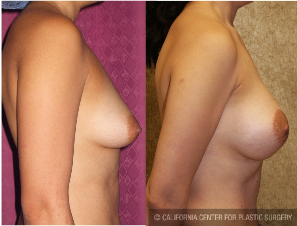 Limited Breast Lift Before & After Patient #6582