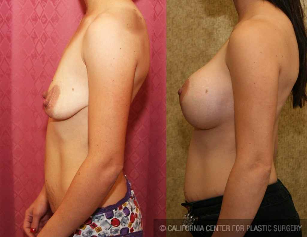Full Breast Lift Before & After Patient #6930