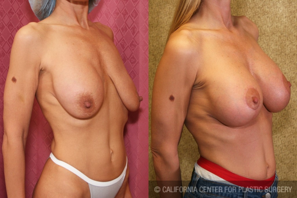Full Breast Lift Before & After Patient #6717