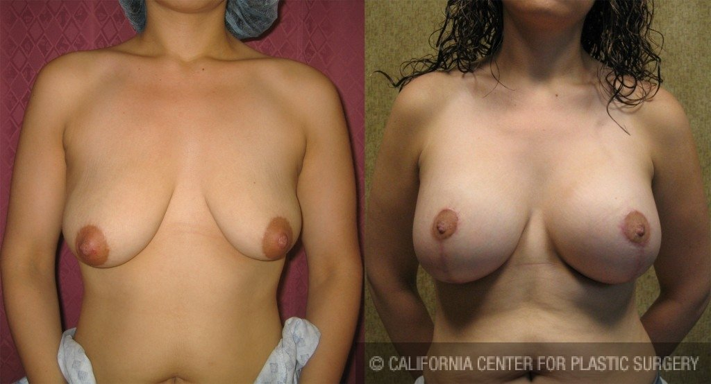 Full Breast Lift Before & After Patient #6686