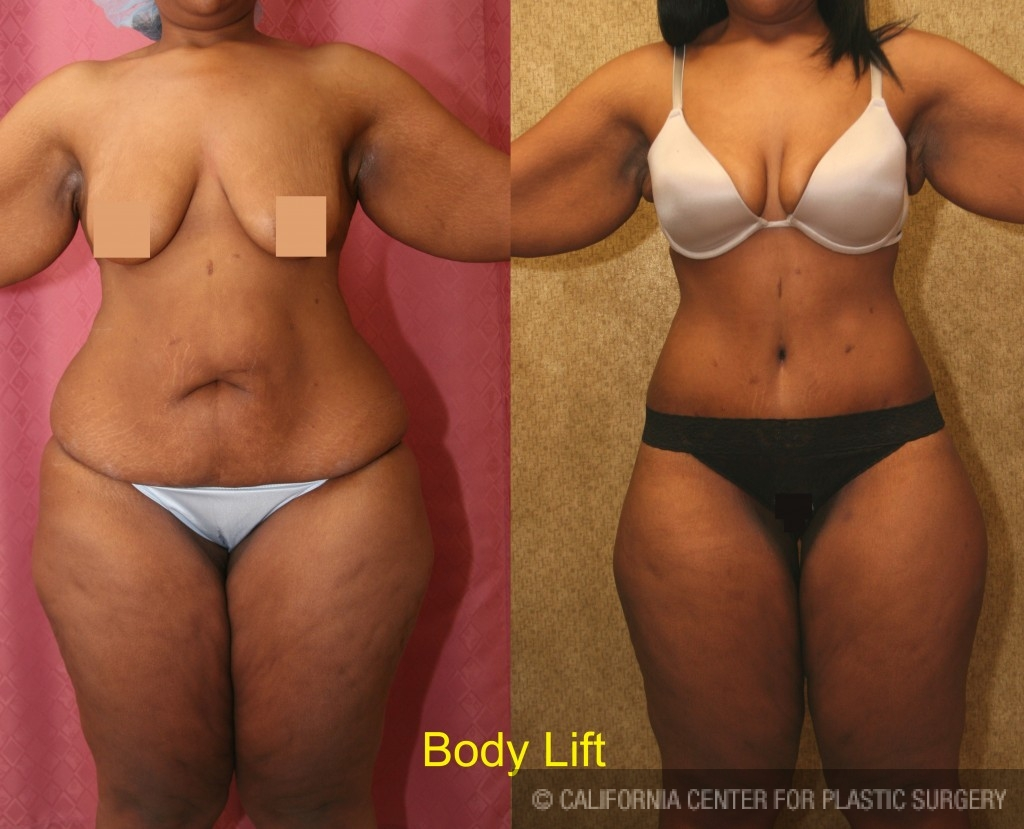 Body Lift Before & After Patient #6058