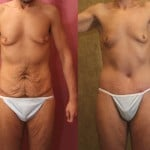 Body Lift Before & After Patient #6061