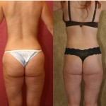 Body Lift Before & After Patient #6051