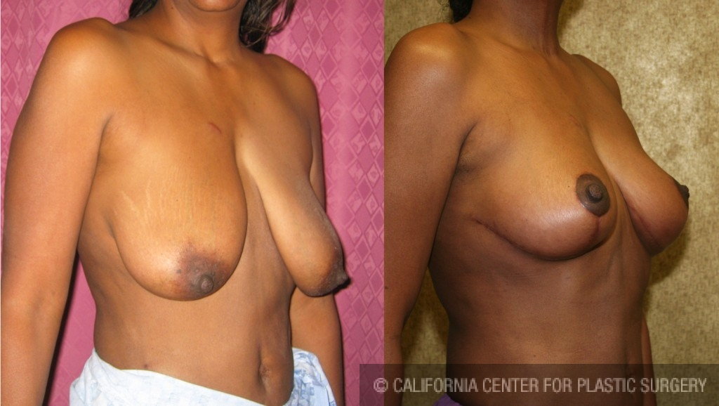 Body Lift Before & After Patient #6692