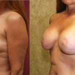 Limited Breast Lift Before & After Patient #6593