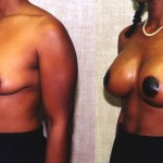 Moderate Breast Lift Before & After Patient #6626