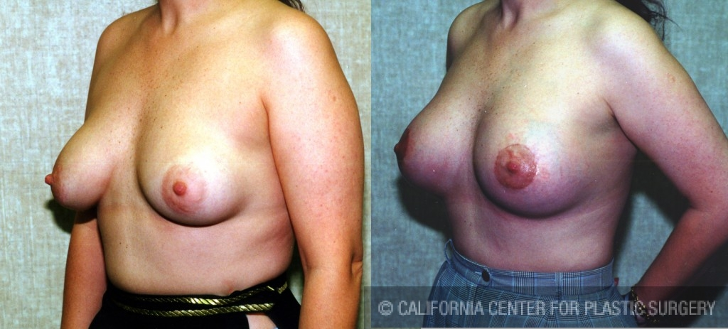 Moderate Breast Lift Before & After Patient #6638