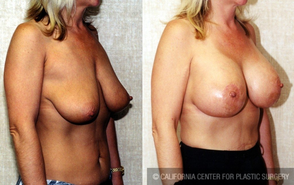 Full Breast Lift Before & After Patient #6678