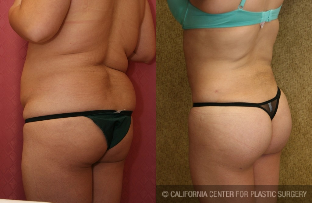 Buttock Lift/Augmentation Before & After Patient #6094