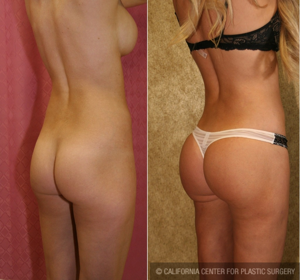 Buttock Lift/Augmentation Before & After Patient #6085