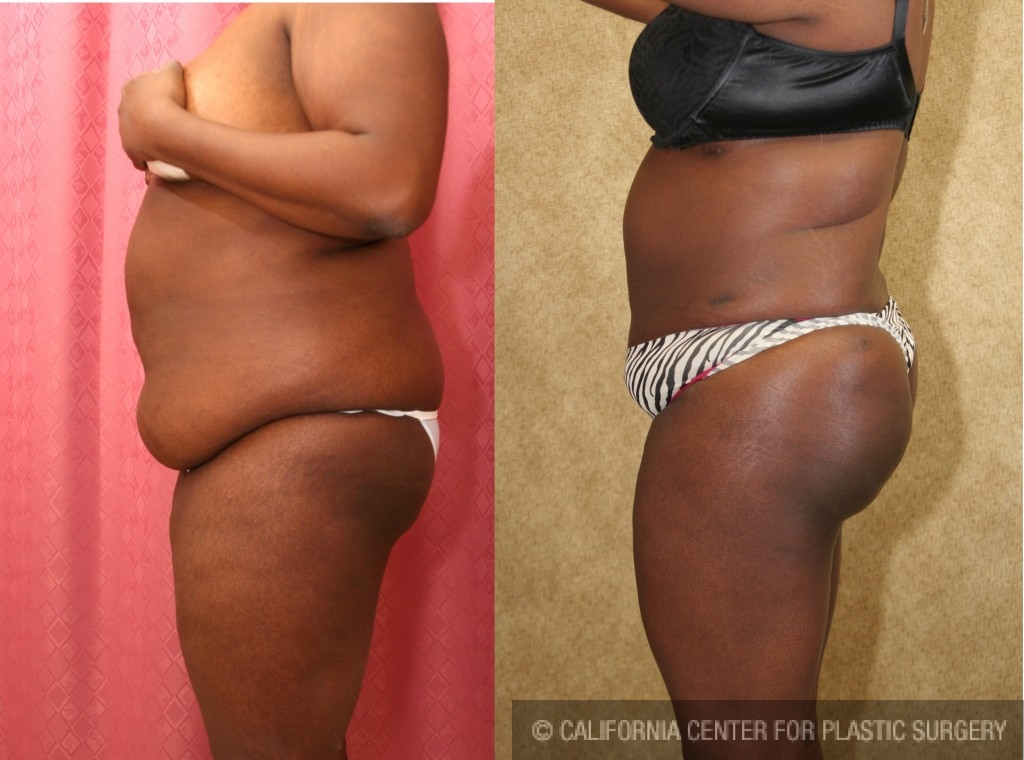 Buttock Lift/Augmentation Before & After Patient #6131