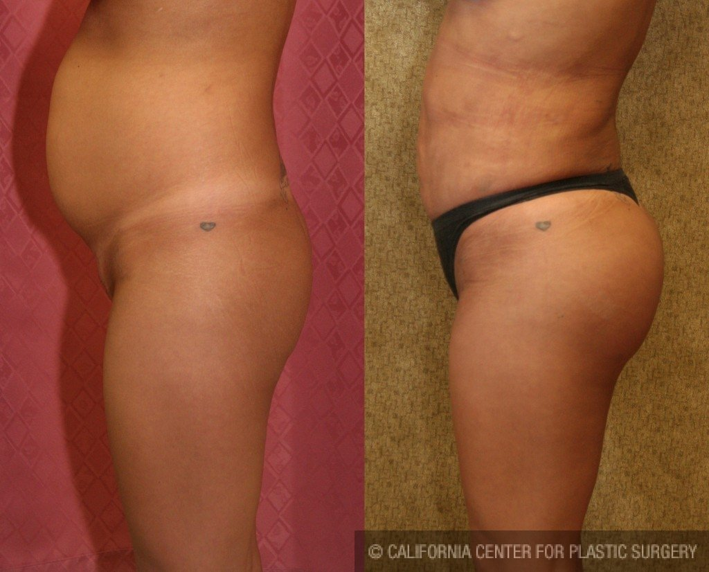 Buttock Lift/Augmentation Before & After Patient #6119