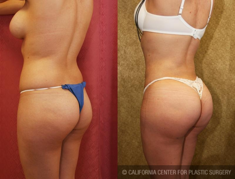 Buttock Lift/Augmentation Before & After Patient #6071
