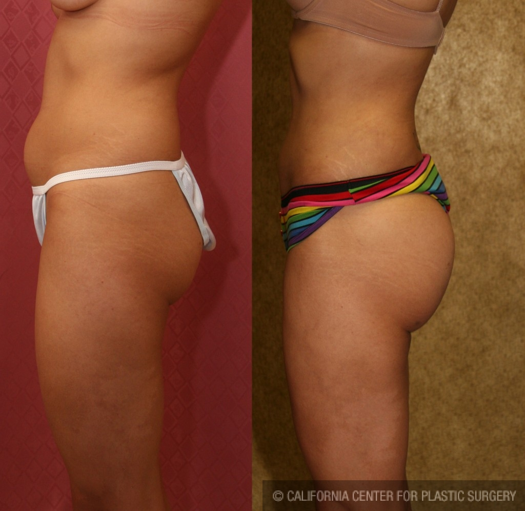 Buttock Lift/Augmentation Before & After Patient #6109