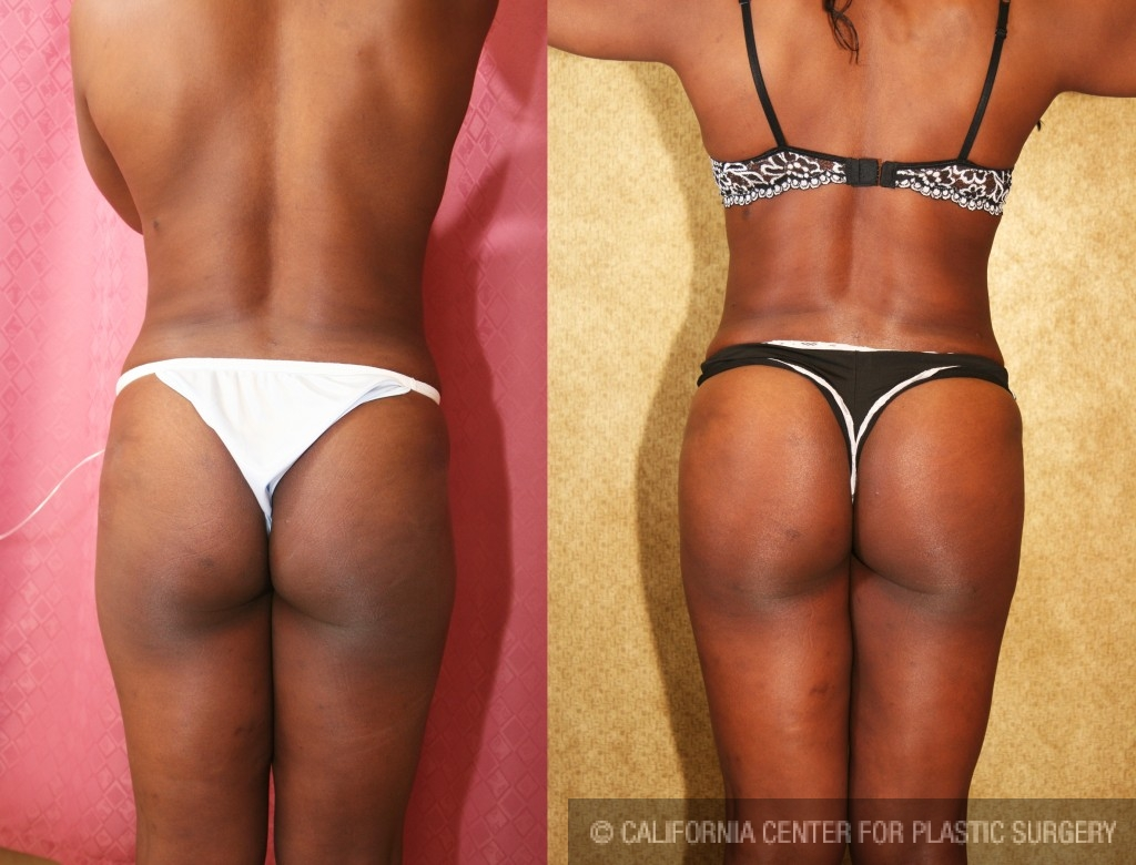Buttock Lift/Augmentation Before & After Patient #6142