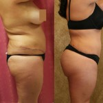 Buttock Lift/Augmentation Before & After Patient #6152