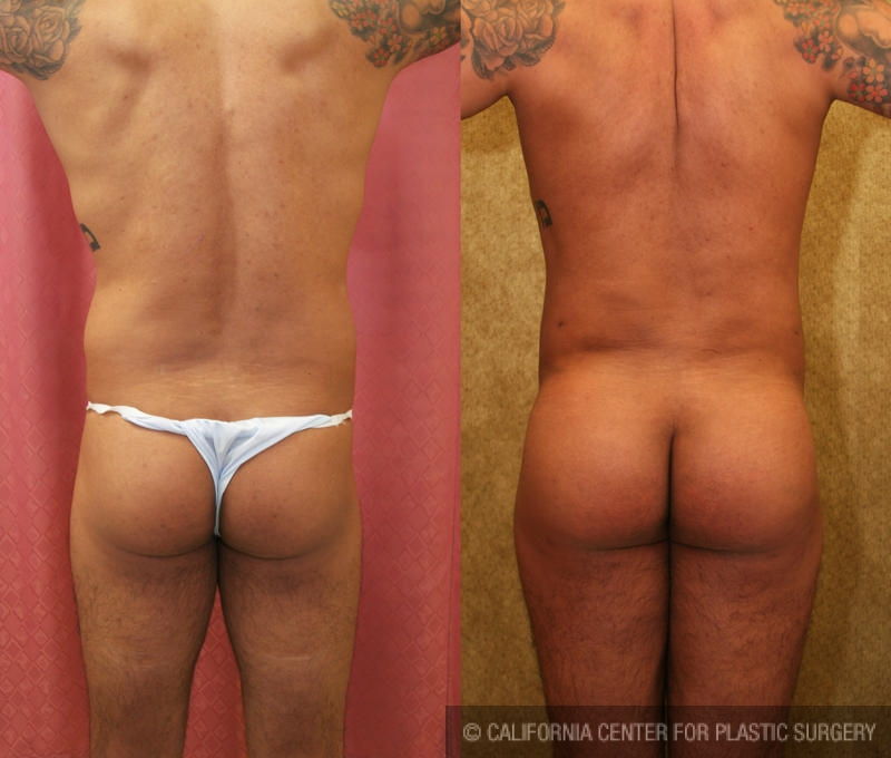Buttock Lift/Augmentation Before & After Patient #6089