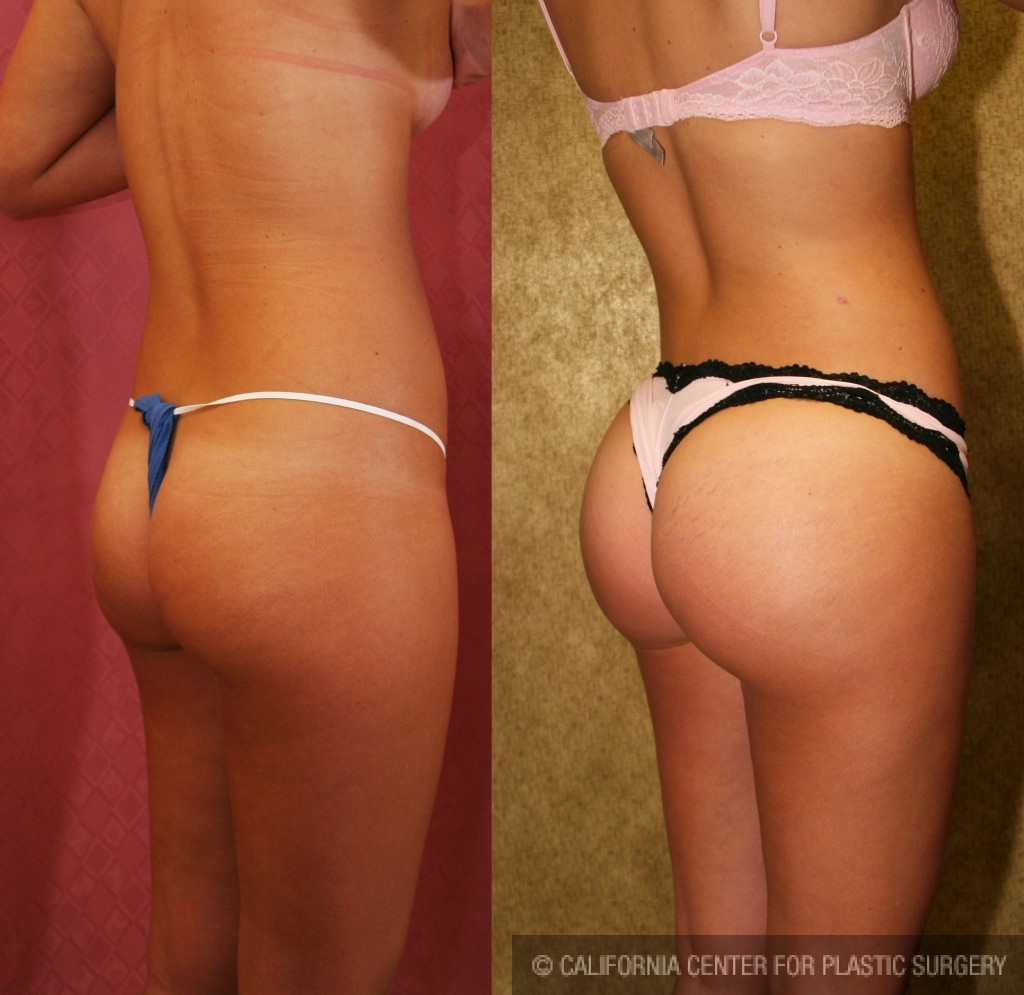 Buttock Lift/Augmentation Before & After Patient #6065