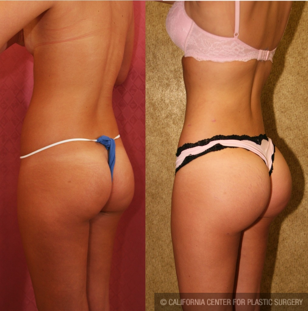 Before and after butt
