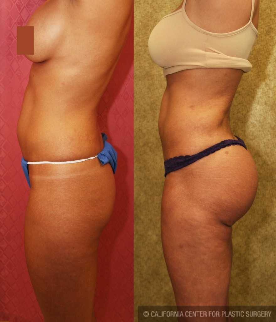 Buttock Lift/Augmentation Before & After Patient #6079