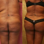 Buttock Lift/Augmentation Before & After Patient #6124