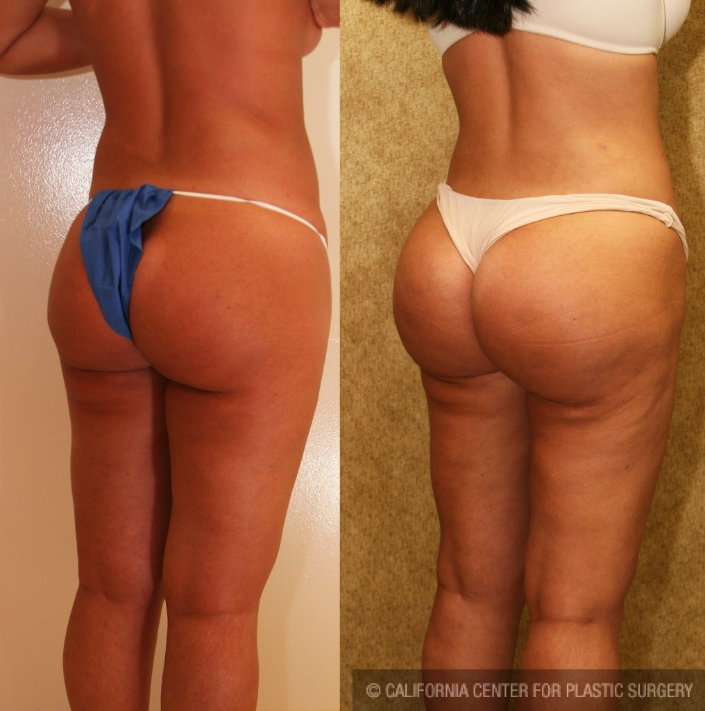 Buttock Lift/Augmentation Before & After Patient #6096