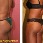 Buttock Lift/Augmentation Before & After Patient #6102