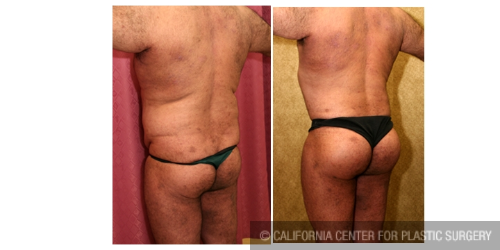 Buttock Lift/Augmentation Before & After Patient #6116