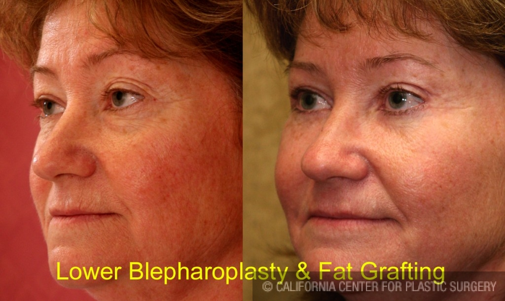 Facial Fat Grafting Before & After Patient #6746