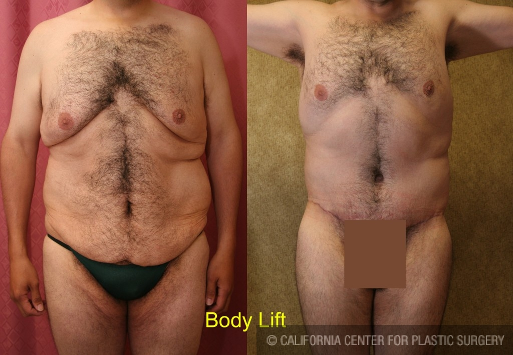 Body Lift Before & After Patient #6041