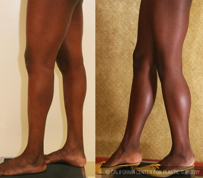 Calf Augmentation Before & After Patient #6869