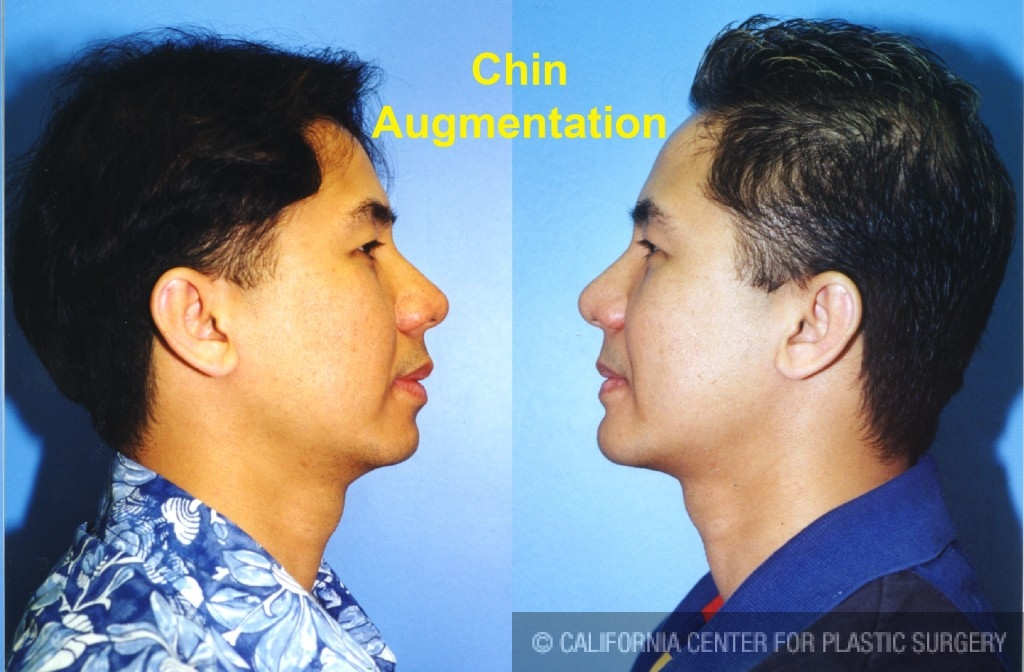 Chin Augmentation Before & After Patient #6799