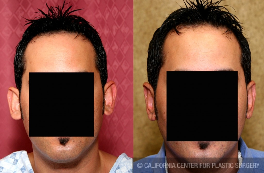 Ear (Otoplasty) Before & After Patient #6451