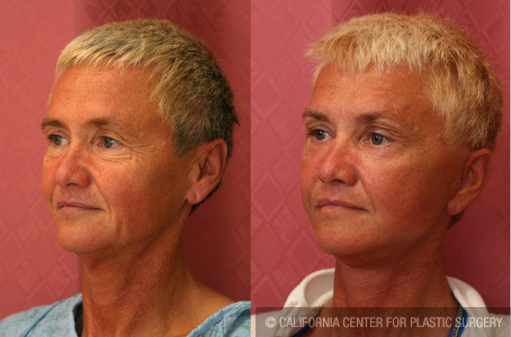 Mid-Facelift Before & After Patient #6778