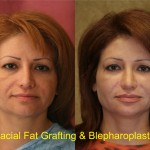 Facial Fat Grafting Before & After Patient #6757