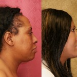 Eyelid (Blepharoplasty) Before & After Patient #6592
